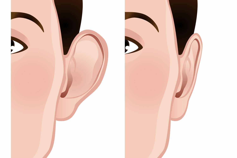 Les oreilles décollées Before&After