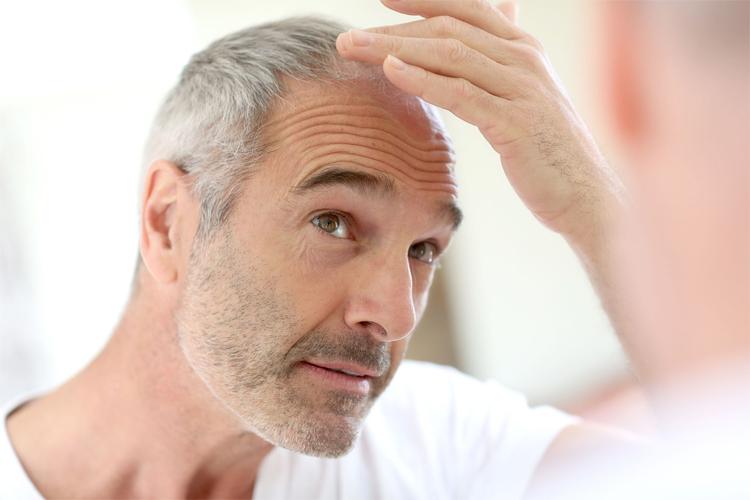 La-chirurgie-esthétique-des-cheveux-slide1