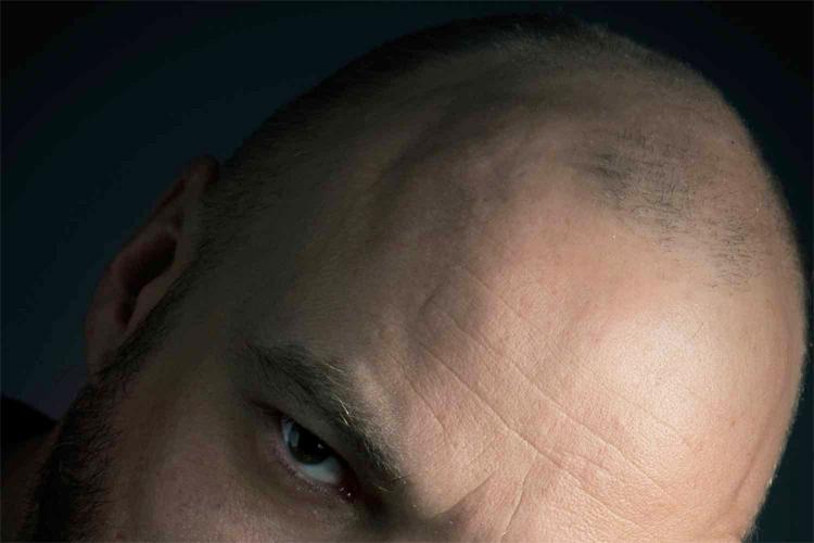 La-chirurgie-esthétique-des-cheveux-slide3