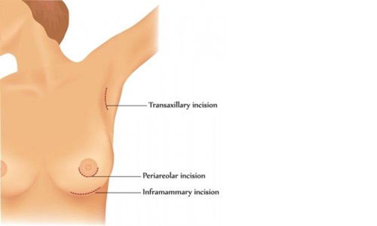 Schémas incision augmentation mammaire