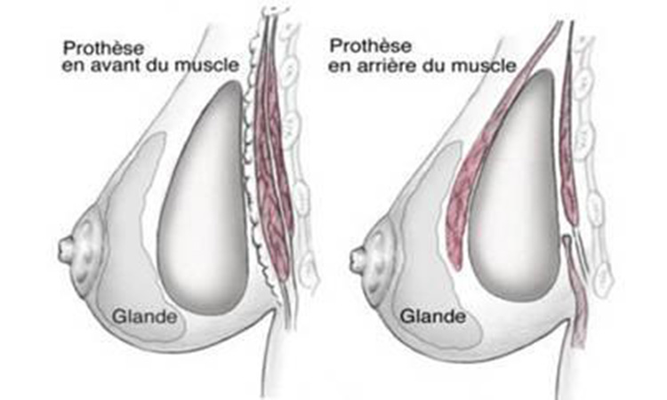 Implant-mammaire-sous-muscle