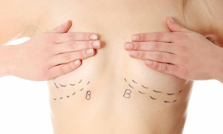 hypotrophie mammaire