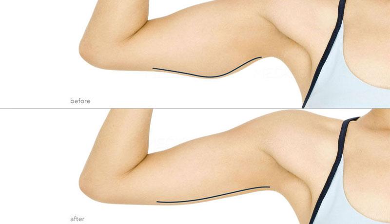 Lifting de la face interne des bras-Before&After