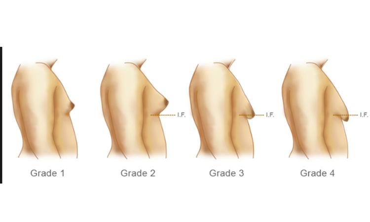 ptôse mammaire