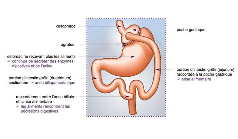 Bypass gastrique