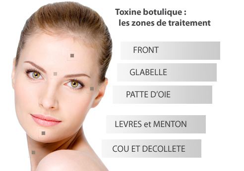 Traitement par inhibition : La toxine botulique