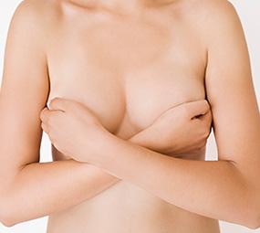 Les seins Tubéreux